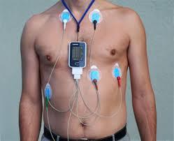holter cardiaque